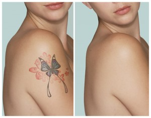 tattoo_removal